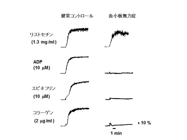 <b>図 血小板無力症患者の血小板凝集曲線</b><br> リストセチン凝集を除く、ADP凝集、コラーゲン凝集、エピネフリン凝集がすべて欠如する。(血栓止血学会誌16:171-178, 2005より引用改変)